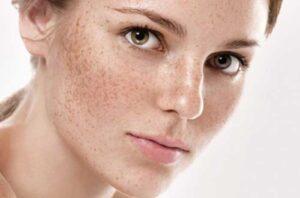 علت ظاهر شدن انواع لکه های پوستی